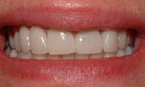 Periodontal Transformation - Al-Fa Perio