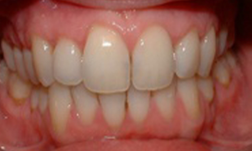 Gingival Recession Transformation